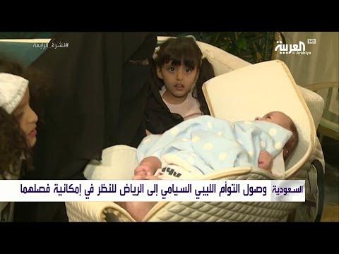 شاهد وصول التوأم السيامي الليبي إلى السعودية لفصله