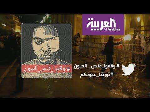 شاهد ناشطون لبنانيون يغطون عينهم تضامنا ما شاب فقد عينه في مواجهات بيروت