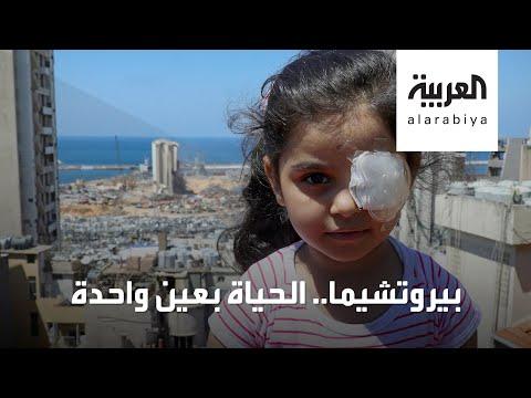 شاهد قصة مؤلمة لطفلة لبنانية فقدت إحدى عينيها بانفجار بيروت